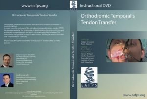 Orthodromic Temporalis Tendon Transfer
