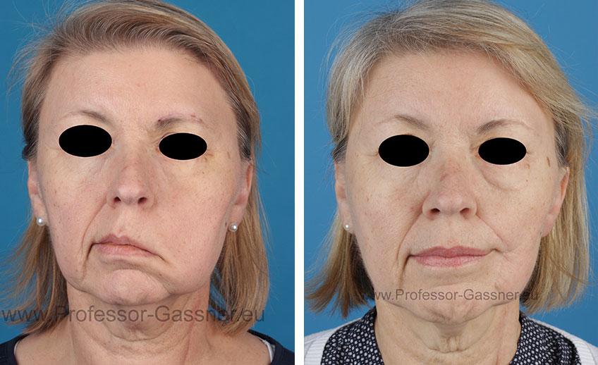Patientin (Vorher/Nachher) mit Gesichtsnervenlähmung Dr. Gassner