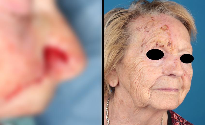 Nasenrekonstruktion (Vorher/Nachher) einer Patientin von Dr. Gassner