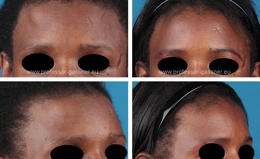 Vorher-Nachher-Bilder einer Patientin mit Lipom bzw. Osteom