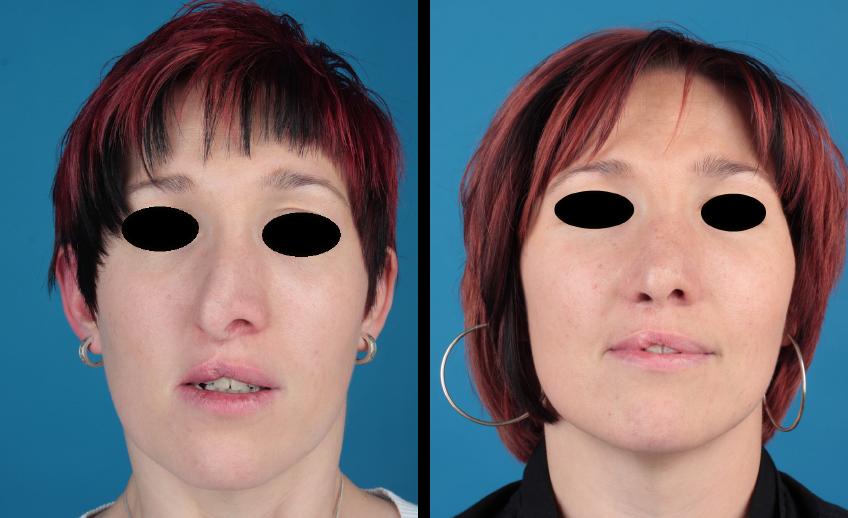 Spaltnase – weiblicher Patient, Vorher-Nachher-Fotografie