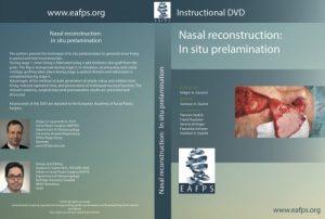 Nasal reconstruction: In situ prelamination