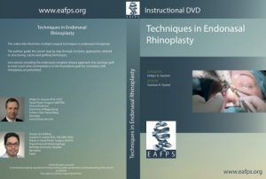 Techniques in Endonasal Rhinoplasty