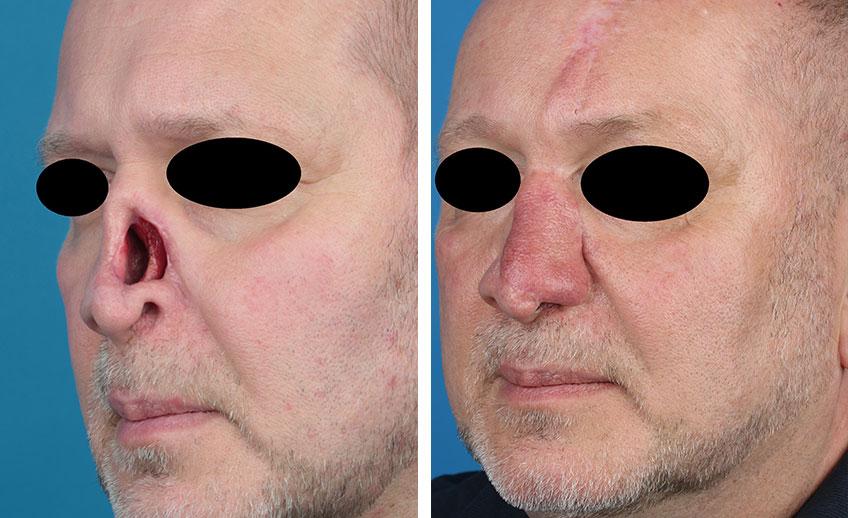 Nasenrekonstruktion bei einem Patienten (Vorher/Nachher) Prof. Gassner