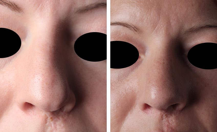 Vorher-Nachher-Bild einer Patientin mit Spaltnase