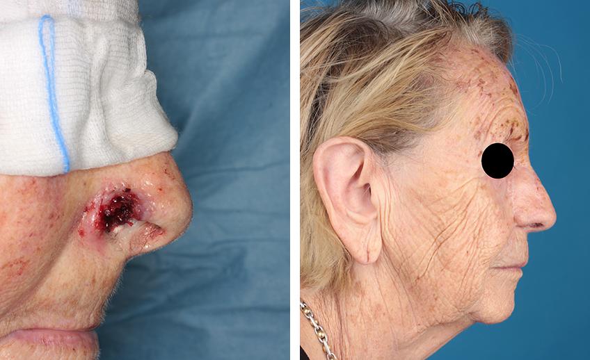 Nasenrekonstruktion einer Patientin Dr. Gassner (Vorher/Nachher)