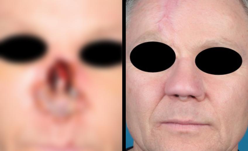 Nasenrekonstruktion (Vorher/Nachher) – Foto eines Patienten