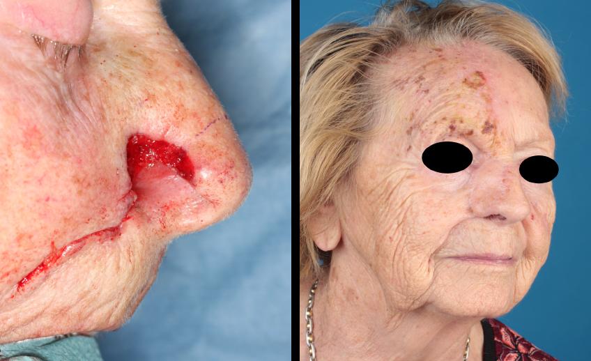 Vorher-Nachher-Bild Nasenrekonstruktion (ab 18)