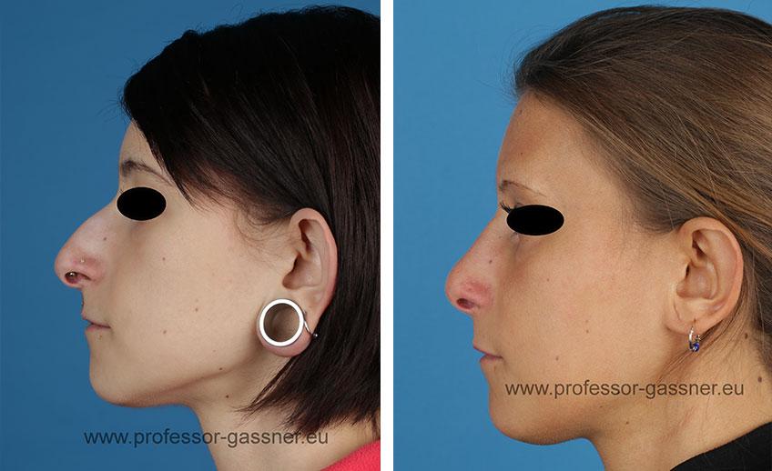 Patientin mit Tunnel (Vorher/Nachher) operiert durch Dr. Gassner