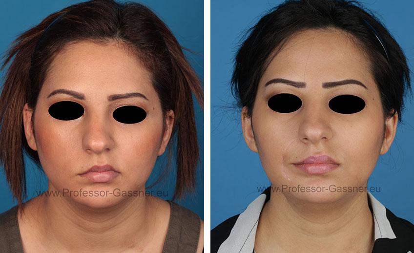 Vorher-Nachher-Bild einer Patientin mit Gesichtsnervenlähmung